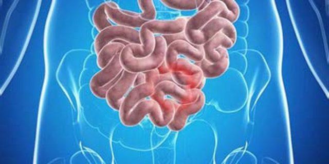 Подвздошная кишка: где находится, строение и функции органа