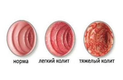 Антибиотики при кишечной инфекции: показания к приему и подбор препарата