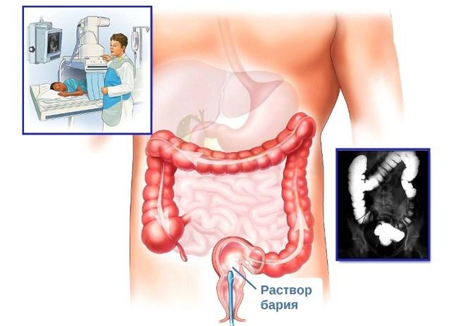 Обзорная рентгенография брюшной полости: подготовка и проведение