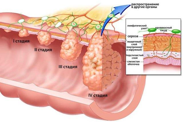 Заболевания толстого кишечника: симптомы, диагностика и лечение