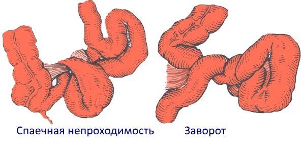 Заворот кишок: симптомы, причины, лечение и прогноз патологии
