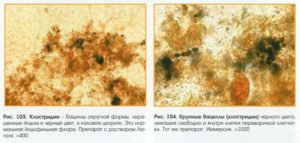 Анализ кала на дисбактериоз у грудничка: подготовка, проведение и расшифровка