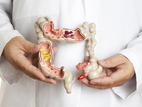 Илеоколит: кишечные и общие симптомы, лечение (диета, препараты)