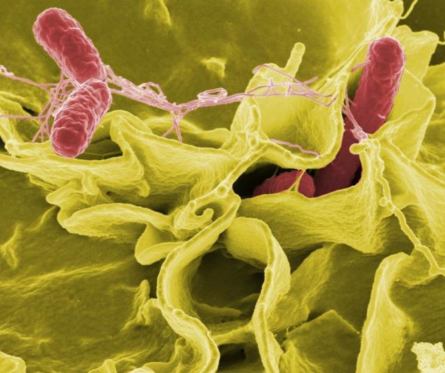Кишечные инфекции: список возбудителей, симптомы и методы лечения