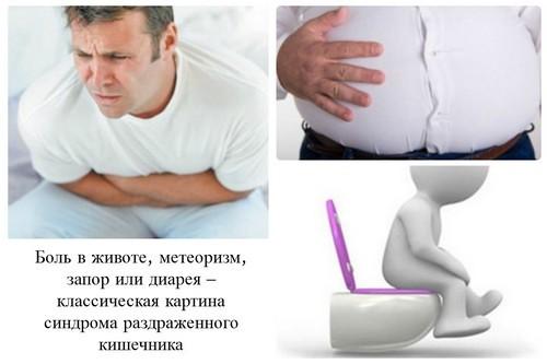 Что является главной причиной синдрома раздраженного кишечника?