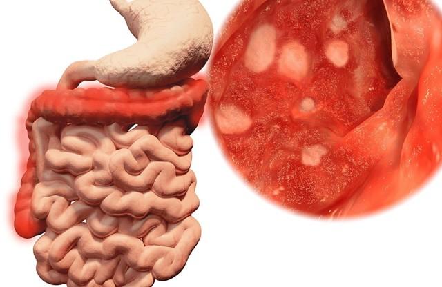 От чего возникают различные патологии кишечника?