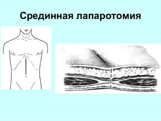 Перитонит у человека: что за болезнь, ее симптомы и методы лечения