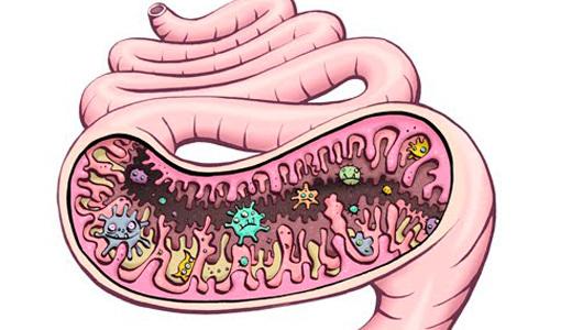 Дисбактериоз кишечника у взрослых: симптомы и лечение патологии