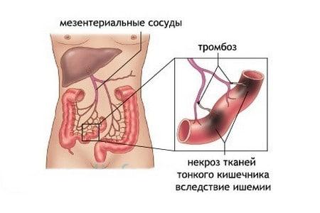 Некроз кишечника: симптомы, причины и прогноз для жизни