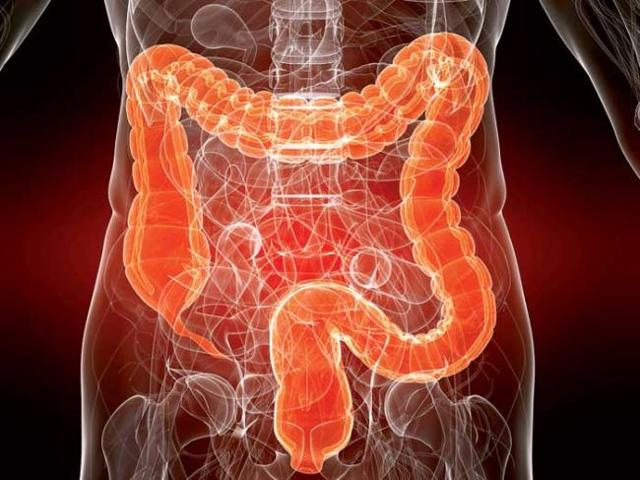 Как проверить кишечник на онкологию (рак): сравнение методов