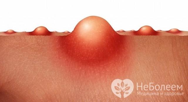 Абсцесс брюшной полости: причины, симптомы и методы лечения