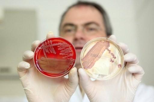 Инфекционные заболевания кишечника: симптомы и список заболеваний