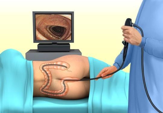 УЗИ кишечника или колоноскопия: какое исследование лучше и информативнее?