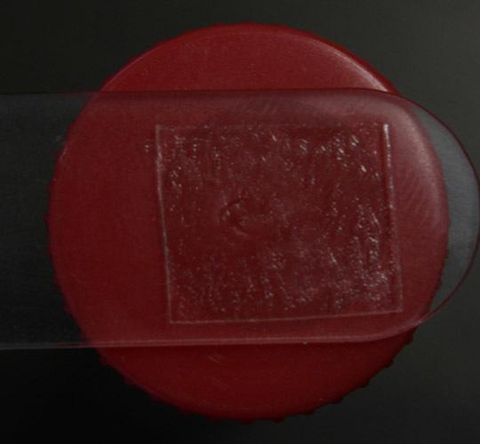 Перианальный соскоб: подготовка и проведение забора материала