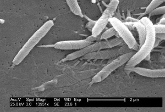 Helicobacter pylori в орагнизме человека и ее влияние на здоровье
