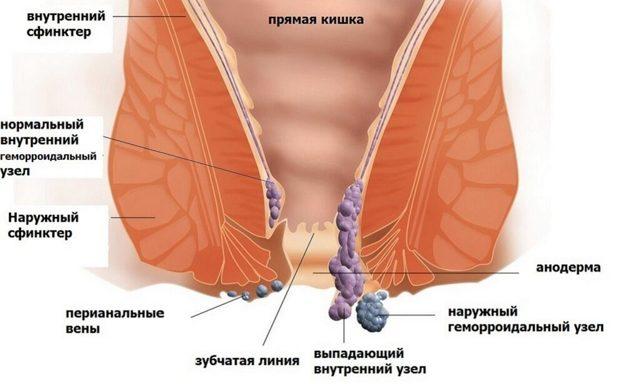 Ложные позывы к дефекации: причины и лечение (питание, медикаменты)