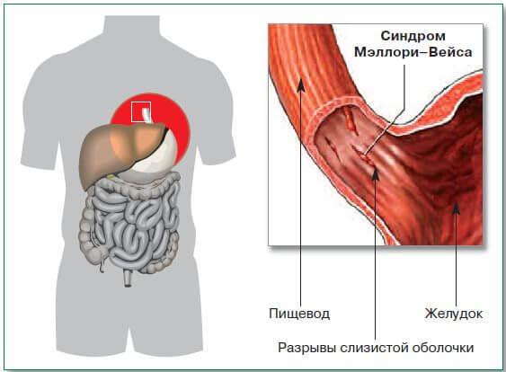 Амилорея: причины состояния и лечение (препараты, диета)
