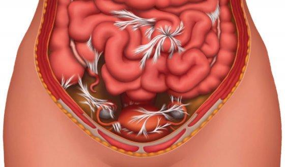 Спаечная болезнь брюшной полости: симптомы и лечение (хирургия, диета)