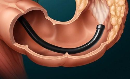 КТ кишечника: суть процедуры, подготовка и проведение