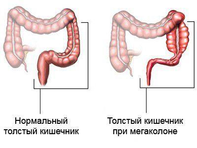 Мегаколон кишечника: что это такое и как лечить патологию?
