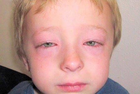 Пищевая аллергия у ребенка: симптомы (с фото) и методы лечения