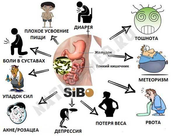 Синдром избыточного бактериального роста в кишечнике: симптомы и лечение
