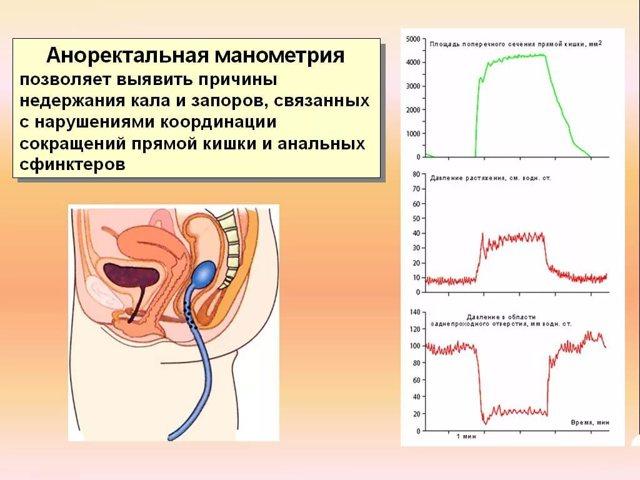 Недостаточность анального сфинктера: симптомы и лечение (физиотерапия, медикаменты, хирургия)