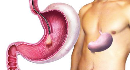 Гастроскопия (ЭГДС): что показывает, подготовка и проведение исследования