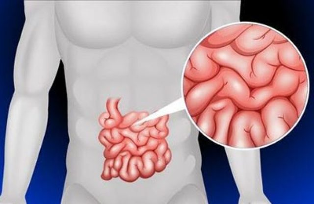 Синдром мальабсорбции: причины, симптомы и методы лечения