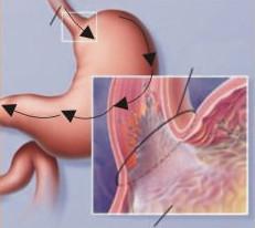 Бродильная диспепсия: симптомы и лечение (питание, медикаменты)