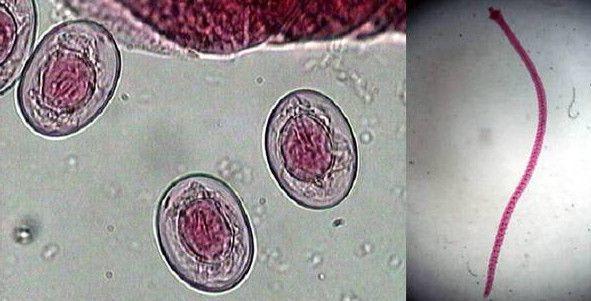 Анализ кала на гименолепидоз: суть исследования, подготовка и проведение