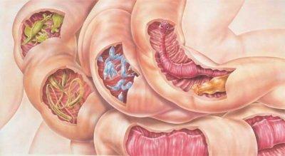Почему бурлит и урчит в кишечнике: причины и методы устранения