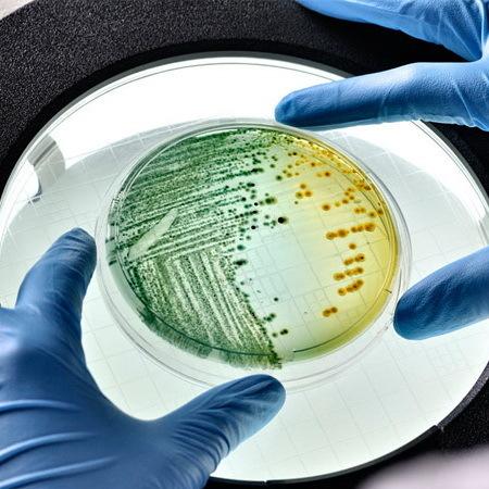 Анализ кала на УПФ (условно-патогенную флору): суть, подготовка и сдача анализа