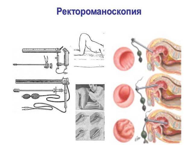 Ректороманоскопия: суть процедуры, подготовка и проведение