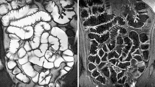 МРТ кишечника или колоноскопия: сравнение методик и их информативности