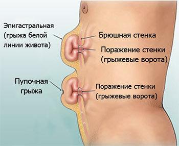 Грыжа брюшной стенки: виды, симптомы и лечение (хирургия)