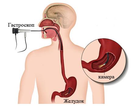 Аэрофагия: симптомы и лечение (принципы питания, препараты)
