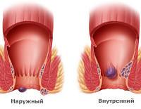 Геморрой: причины, симптомы и лечение (диета, препараты, хирургия)
