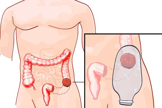 Неспецифический язвенный колит кишечника: симптомы и лечение (диета, препараты)