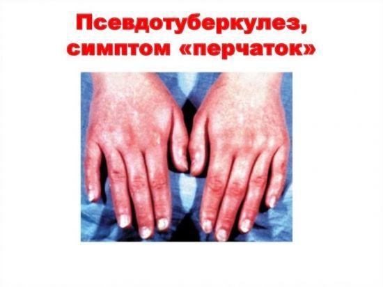 Иерсиниоз: симптомы, лечение и осложнения кишечной инфекции
