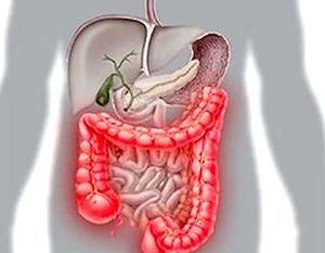 Энтероколит у взрослых: симптомы и лечение (диета, препараты, народное)