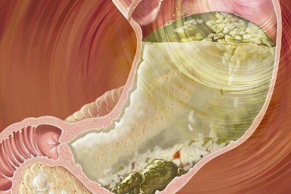 Гастропарез: симптомы и лечение (диета, медикаменты, хирургия)