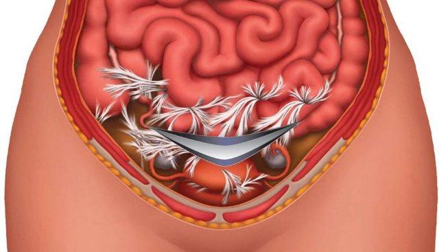 Пневматоз кишечника на УЗИ: что это такое, причины и лечение патологии