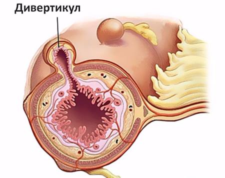 Биопсия кишечника: как проводится и что показывает процедура?