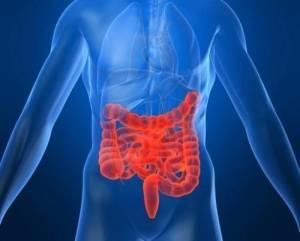 Имеются ли у вас заболевания кишечника? - Пройти онлайн-тест