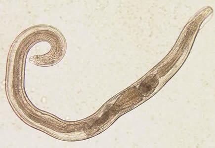 Анализ кала на гельминты и их яйца: подготовка и сдача исследования