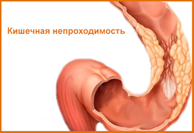 Дивертикулез кишечника: симптомы, лечение патологии и прогноз у взрослых