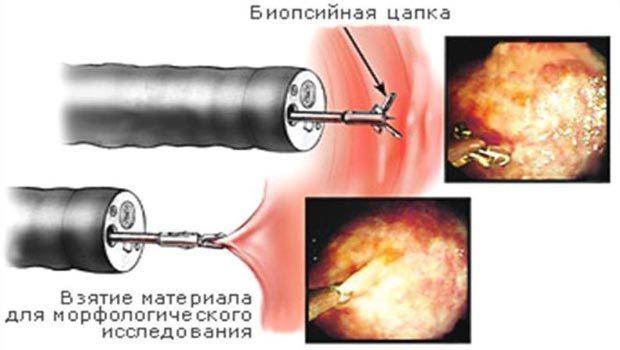 pH-метрия желудка: подготовка и проведение исследования