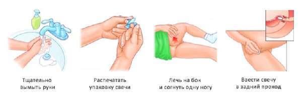 Глицериновые свечи для взрослых: инструкция по применению