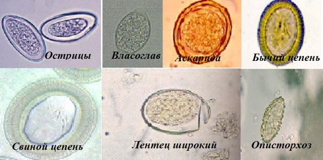 Анализ кала на яйца глист: как его правильно сдавать?
